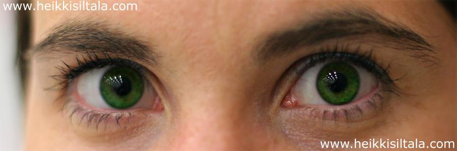 avauskuva: parhaat silmät -kilpailun voittaja äänin 100-0, kuva 069001, 7.7.2007
