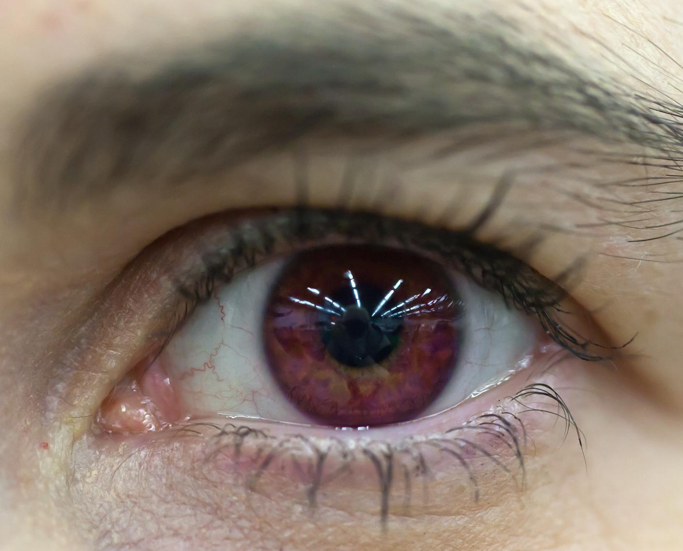 The Eyes Part III, photo 186093, 2011-11-26